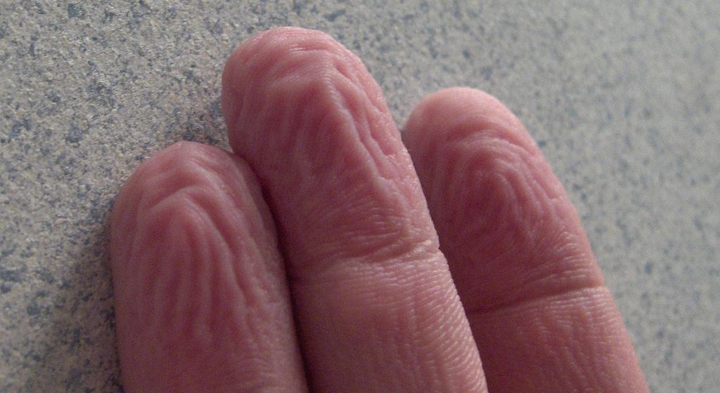 schrumpelige finger schrumpelhaut nass